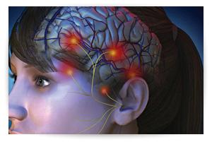 terapie_integrate_cefalea